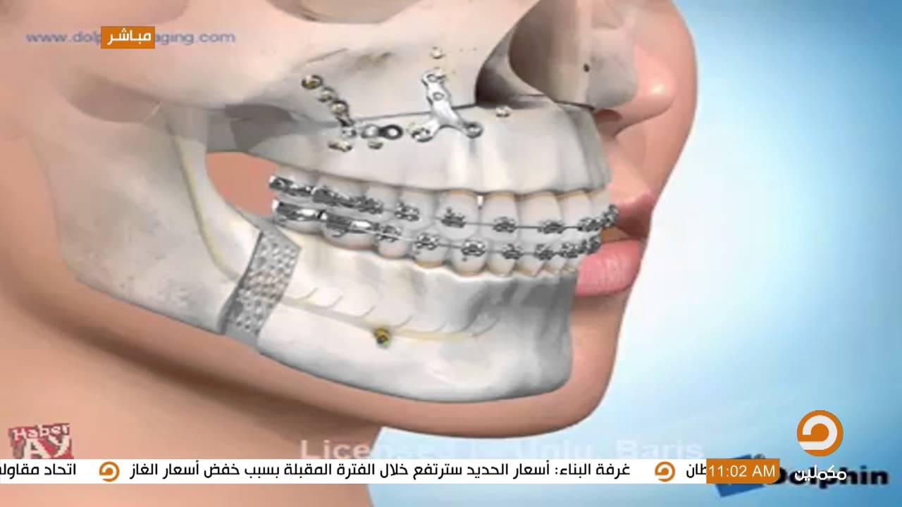 معالجة تراجع الفك السفلي مابين الجراحة والتقويم بيتنا أحلى Youtube