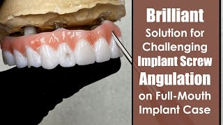 Brilliant Solution for Challenging Implant Screw Angulation on a Full-Mouth Zirconia Case