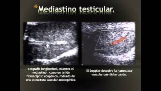Escrotales ultrasonido varices