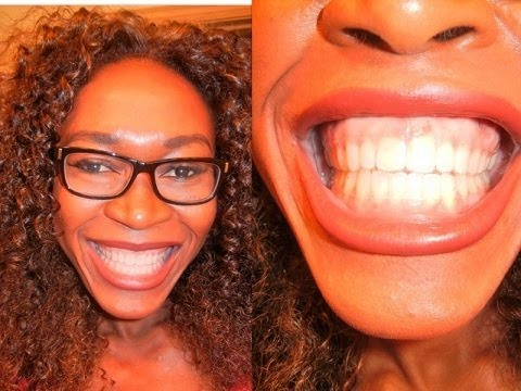 {#144} SHOWING MY ESSIX RETAINERS. REMOVABLE RETAINERS.