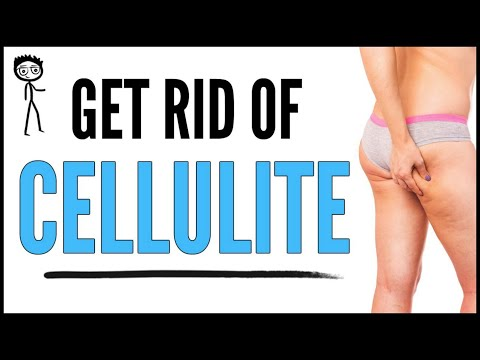 How to Get Rid of Cellulite on Thighs and Butt
