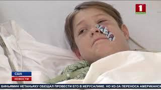 В американском Миссури 10-летний мальчик выжил после того, как шампур проткнул ему голову