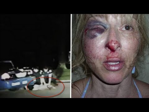 Police brutality: Tallahassee cops break Christina West's cheek in DUI stop