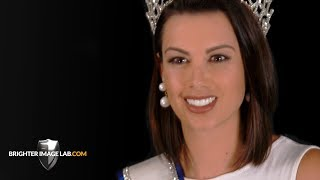 Pageant Queen gets New Incredibil™ Smile Makeover w/ No Dentist Dental Veneers by Brighter Image Lab