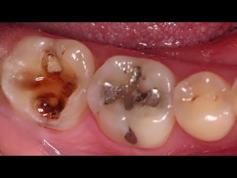 Home Remedies for Toothache - Immediate Pain Relief