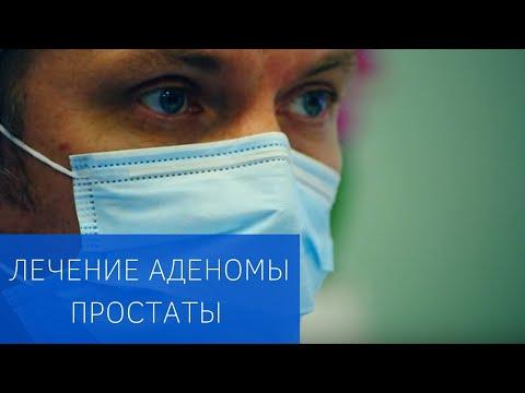 Эмболизация простатических артерий