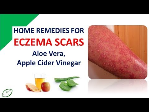 Home Remedies For Eczema Scars | Removed Eczema Scars With Aloe Vera /  Apple Cider Vinegar