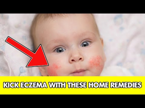 ✅ Eczema || home remedies for eczema|| eczema treatment