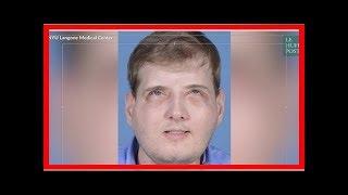 Un an après sa greffe du visage, le pompier Patrick Hardison, brûlé au 3ème degré en 2001, a retrou