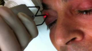 Madonna lift. Fractional eyelift at the Coltishall clinic, Norfolk, UK Thumbnail