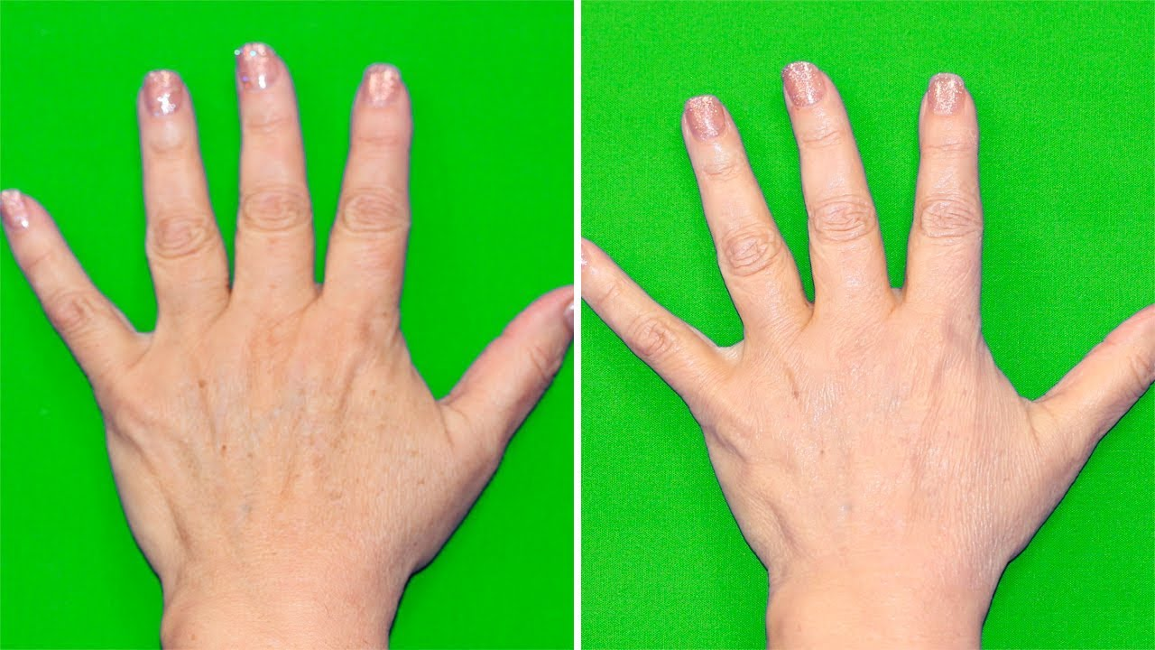 how to help your hands look younger