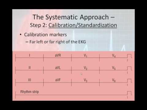 12 Lead Interpretation Part 2 The 6 Step 12 Lead