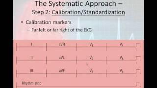 12 Lead Interpretation Part 2: The 6 Step 12-Lead Interpretation Process