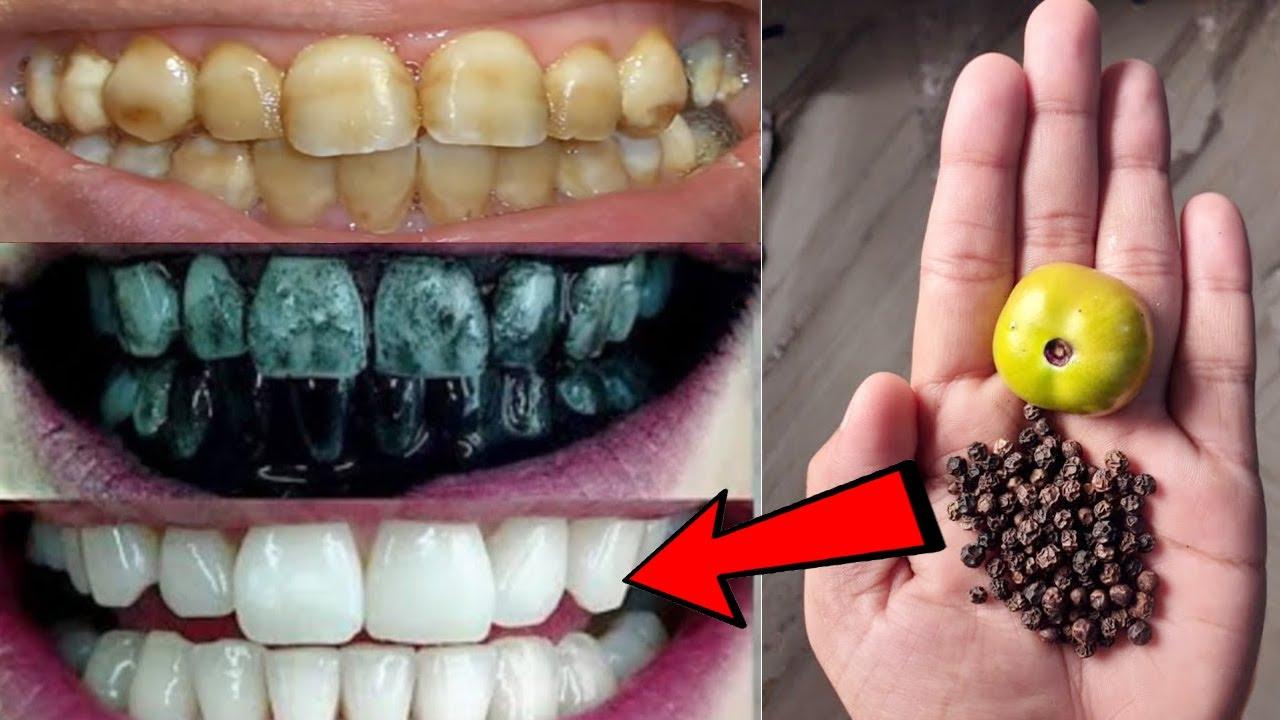 দাঁত একদম সাদা ঝকঝকে এবং মুখের গন্ধ দূর করতে আজই ব্যাবহার করুন এই জিনিস !Teeth Whitening Remedy EP 3