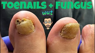 HOW TO CUT THÏCK TOENAILS WITH FUNGUS