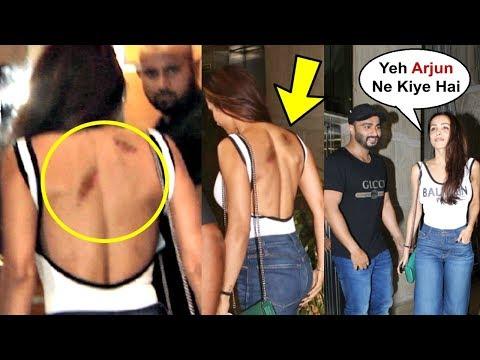 Malaika Arora Khan Caught With Love Bites On Her Back By Boyfriend Arjun Kapoor Mp3