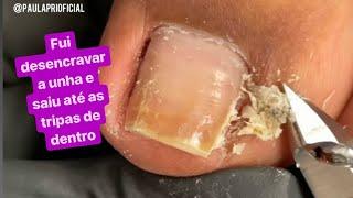 FUI DESENCRAVAR A UNHA E SAIU ATÉ AS TRIPAS DE DENTRO😱What a horrible thing came out of that nail