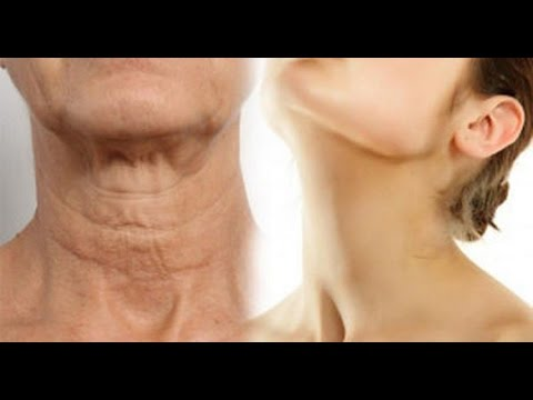 Simple recipes and natural to eliminate sagging neck and have a young and flawless neck