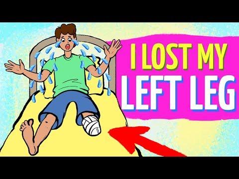 I Lost My Left Leg