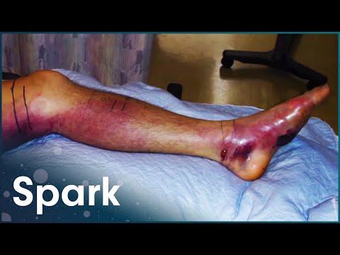 How Does Snake Venom Work? | World's Worst Venom | Spark