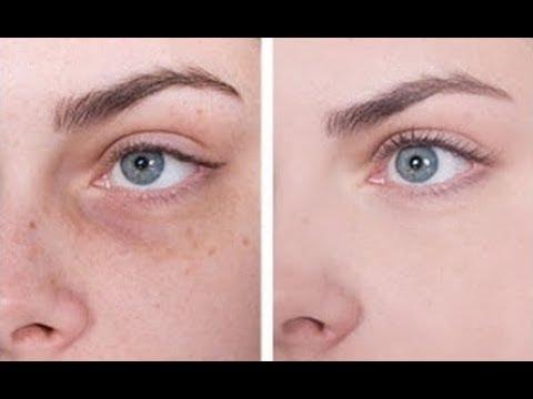Dark Circles Wrinkles Removal Anti Ageing Eye Cream Diy Powerful