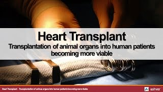Heart Transplant - Transplantation of animal organs into human patients becoming more viable
