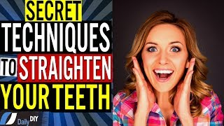 How to Straighten Your Teeth at Home Without Braces: Hidden Secret Techniques