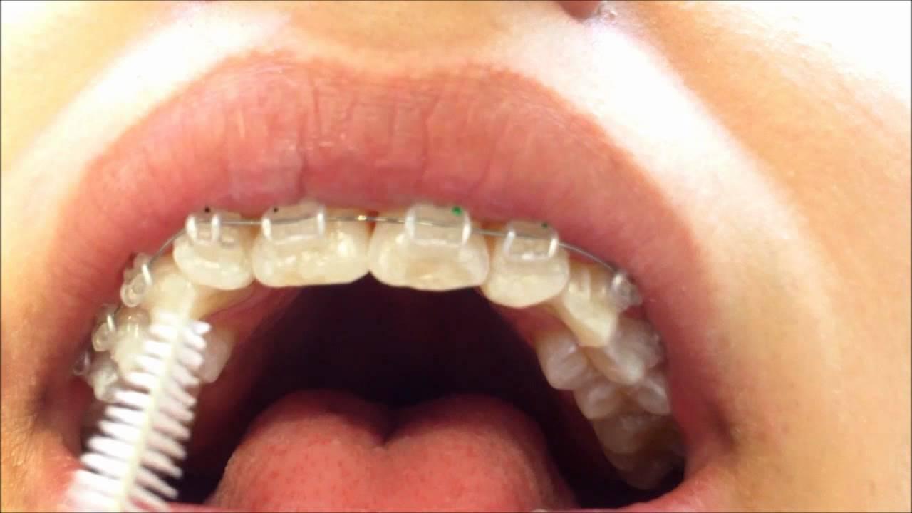 ¿Como limpiar mis dientes con brackets  - YouTube d132640b1e9c