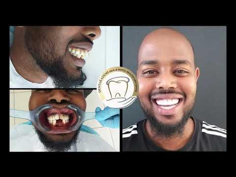 Jamac Abdinuur, Dentakademi Oral and Dental Healthcare Center, Istanbul