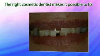 Cosmetic Dentist Boynton Beach Find Cosmetic Dentistry Boynton Beach Florida Thumbnail