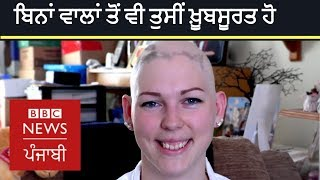 Hair loss or Alopecia can not steal your beauty | BBC NEWS PUNJABI