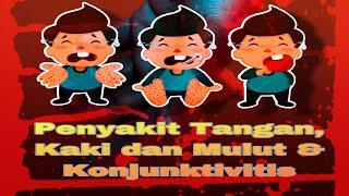 Membincangkan penyakit tangan, kaki dan mulut (HFMD) yang popular di kalangan kanak-kanak Malaysia. .