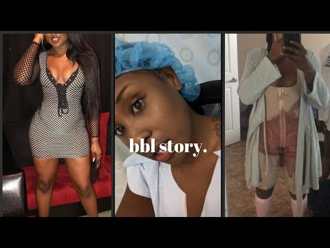 My BBL JOURNEY! The Whole Truth! Footage Included
