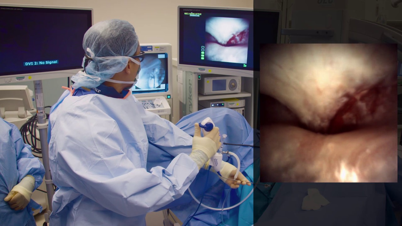 Flexible Ureteroscopy With Dr  Sur  Small Stone Procedure