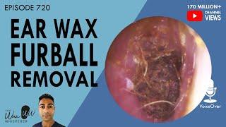 720 - Ear Wax Furball Removal