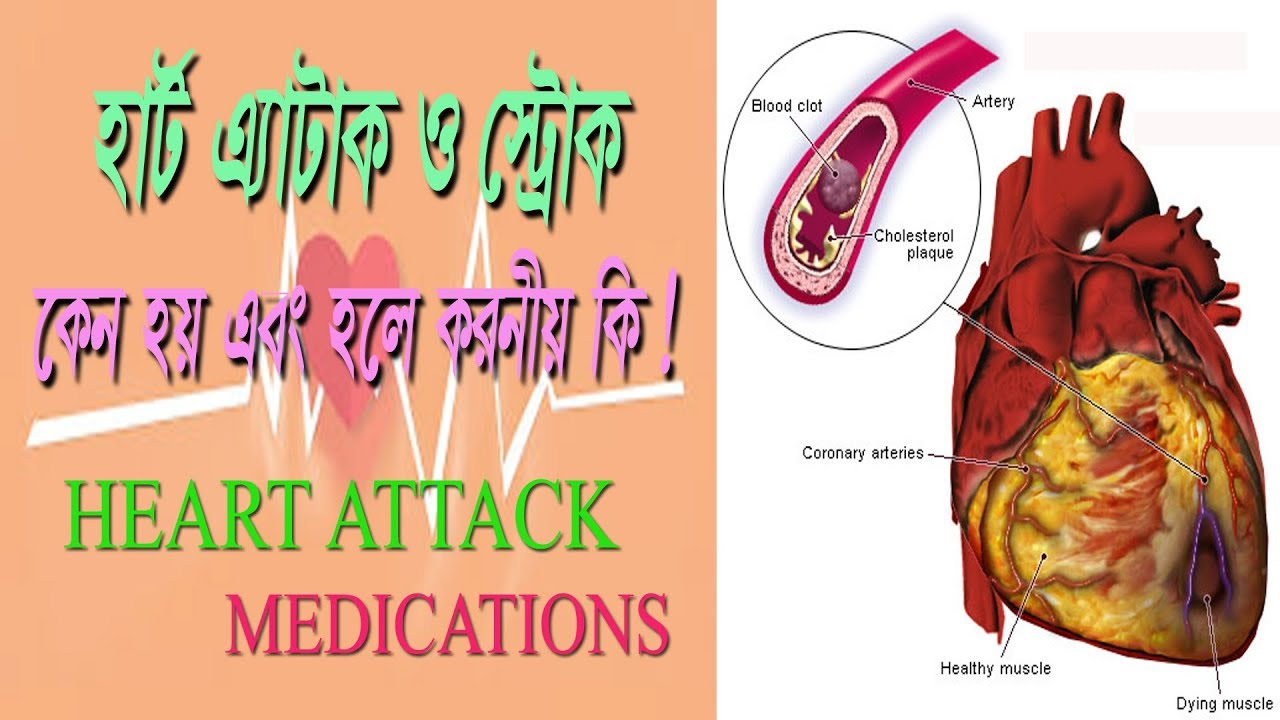 Discussion on this topic: How to Treat Heart Disease, how-to-treat-heart-disease/