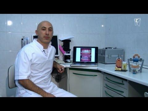 Причины патологической стираемости зубов и способы