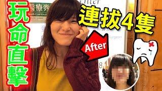 【玩命直擊】一次過拔掉四隻智慧齒的亡命實錄,手術前還不忘教日文,第二天還吃了咖哩飯,結果竟然是這樣!| (鄧幹耀 牙醫) thumbnail