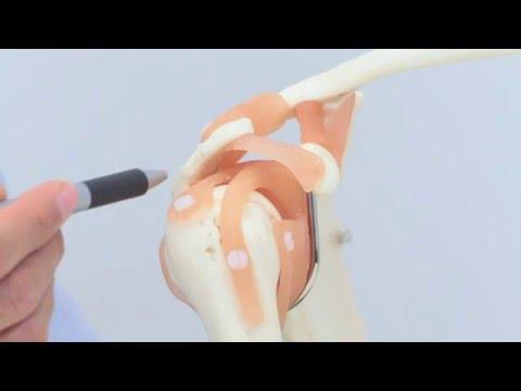 Die Rotatorenmanschette - Funktion und Verletzungen - YouTube