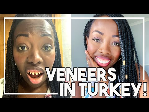 Getting Veneers In Turkey! THE TRUTH! | Dental Center Turkey!