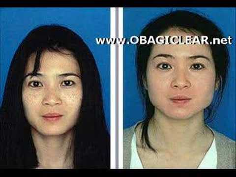 Obagi Skin Care Results ☆ Obagi Nuderm Youtube