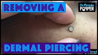 """""""Popping Out""""  a dermal piercing on the Right Cheek"""
