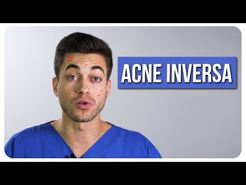 Acne inversa -