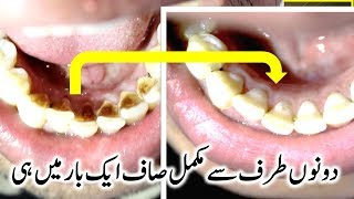 Teeth Whitening & Try it Once And See The Result ( 2018 )