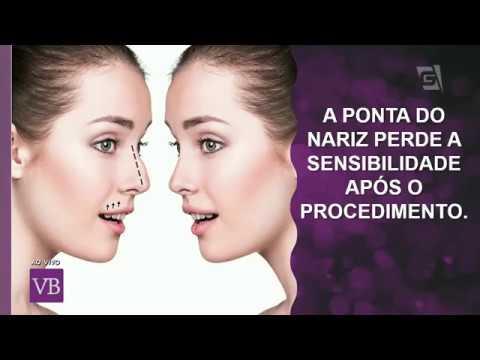 Rinoplastia - Cirurgia Plástica Marco Cassol - Programa Você Bonita