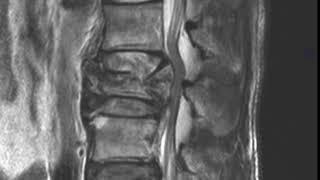 MSK Trauma C7 MR Burst Fracture C