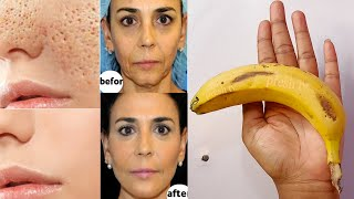 I prepared Banana Face Mask that will take you 10 years back pores tightening home remedy