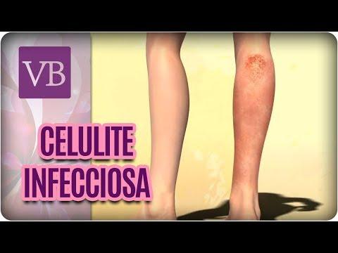 Celulite Infecciosa - Você Bonita (28/08/17)