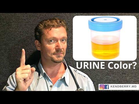 Urine Color Health