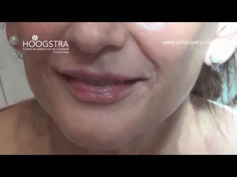 Relleno de labios y surcos nasolabiales (15004)